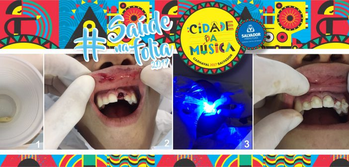 Saúde já realizou 35 cirurgias bucomaxilofaciais no Carnaval